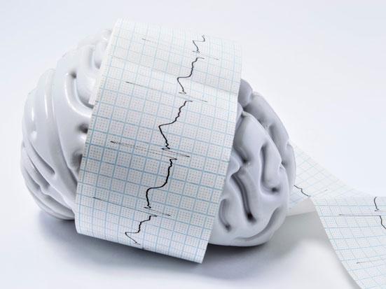 na zdjęciu jest plastikowy mózg owinięty wydrukiem z badania elektroencefalgramem